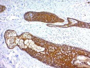 Anti-basic Cytokeratin, clone KRTH/1076
