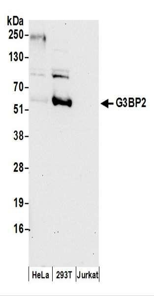 Anti-G3BP2