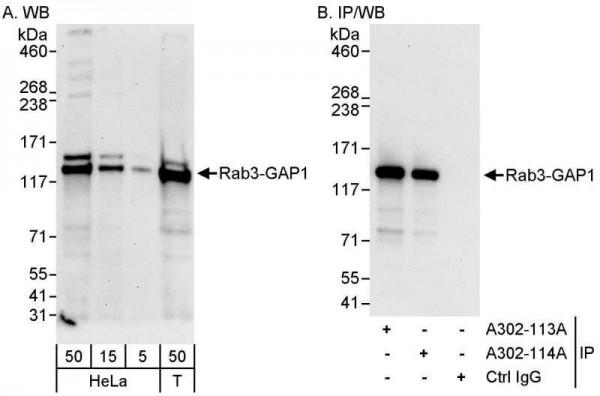 Anti-Rab3-GAP1