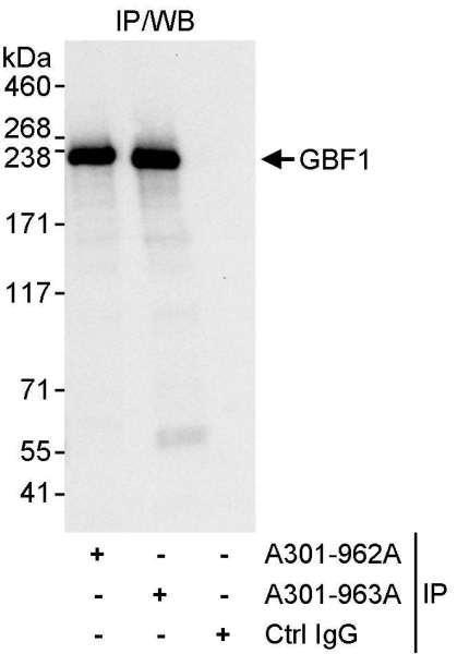 Anti-GBF1