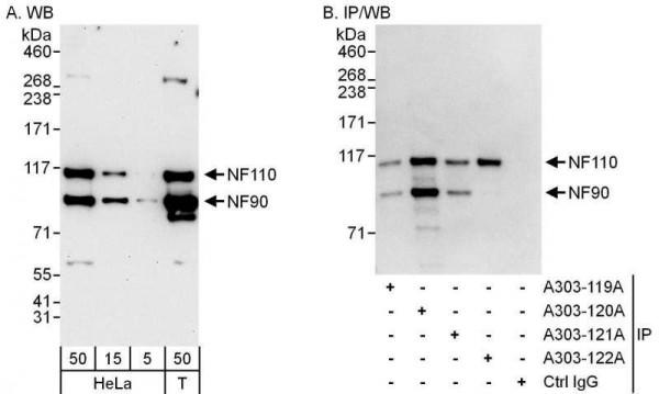 Anti-NF90/NF110