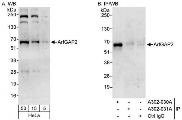 Anti-ArfGAP2