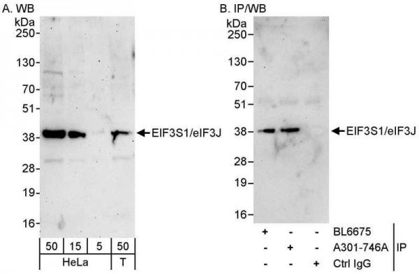 Anti-eIF3J/EIF3S1