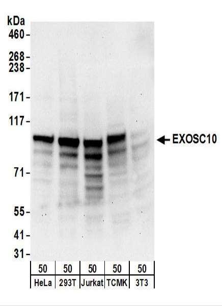 Anti-EXOSC10