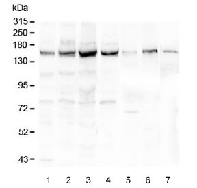 Anti-Collagen III / COL3A1