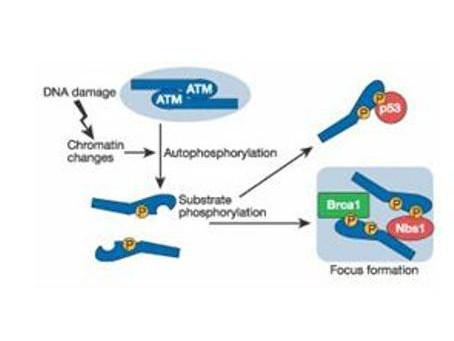 Anti-phospho-ATM Protein Kinase (Ser1981)