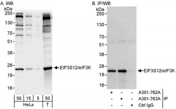 Anti-eIF3K/EIF3S12