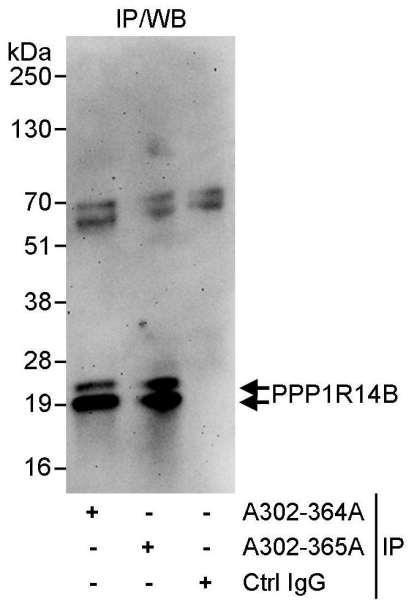 Anti-PPP1R14B