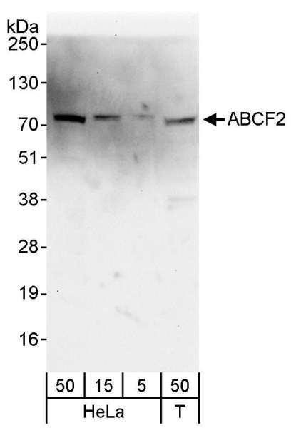 Anti-ABCF2