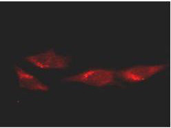 Anti-p53, clone BP53.12