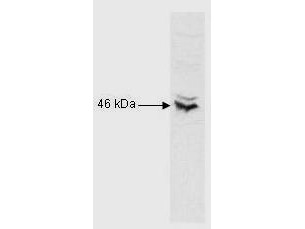 Anti-RFX5, NT (Regulatory Factor X5)