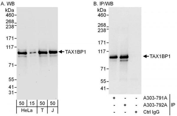 Anti-TAX1BP1