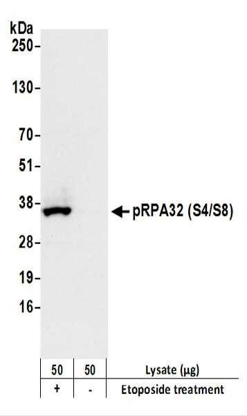 Anti-phospho-RPA32 (Ser4/Ser8) Recombinant Monoclonal