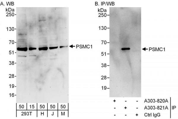 Anti-PSMC1