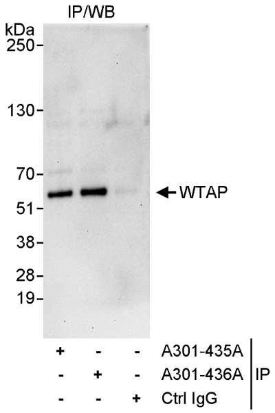 Anti-WTAP