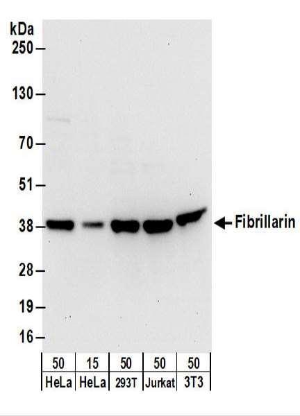 Anti-Fibrillarin