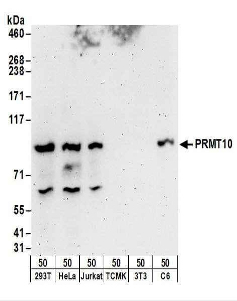 Anti-PRMT10