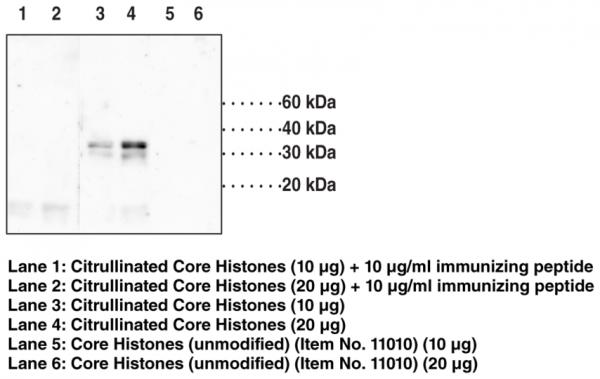 Anti-Histone H1.4 (Citrullinated Arg53)