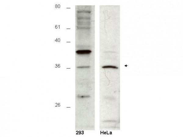 Hus1B Peptide