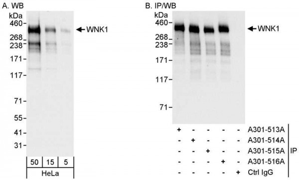 Anti-WNK1