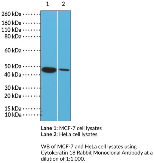 Anti-Cytokeratin 18, clone RM279