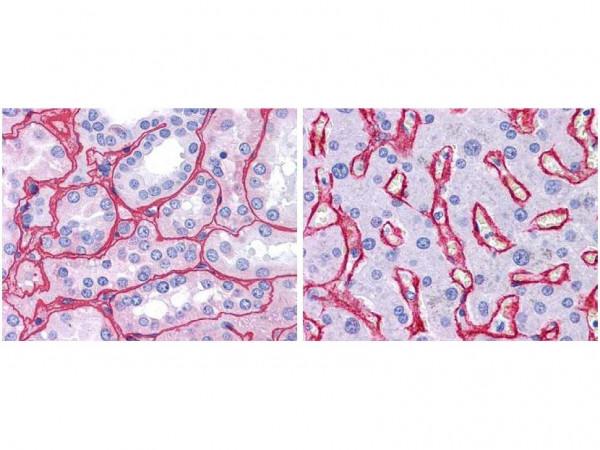 Anti-Collagen Type IV