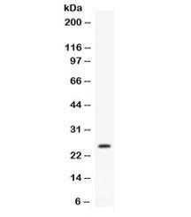 Anti-APOA1 / Apolipoprotein A I