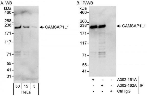 Anti-CAMSAP1L1