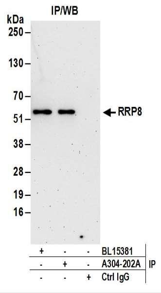 Anti-RRP8