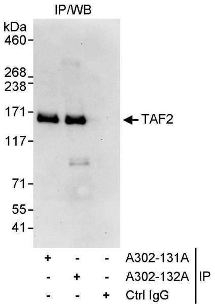 Anti-TAF2