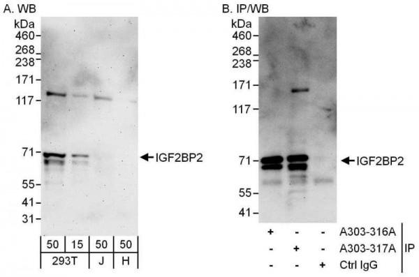 Anti-IGF2BP2