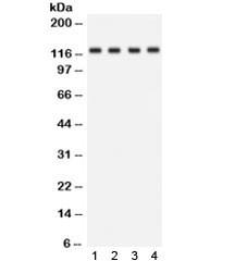 Anti-NKCC2 / SLC12A1