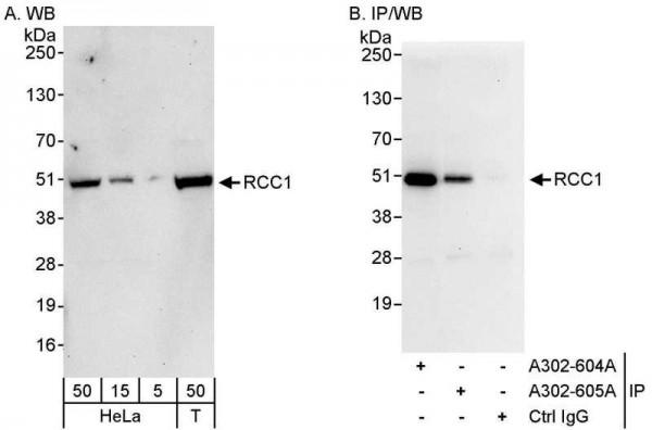 Anti-RCC1