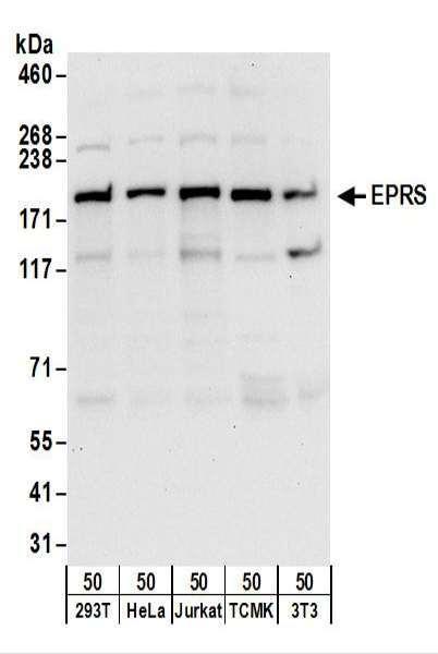 Anti-EPRS