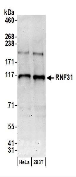 Anti-RNF31