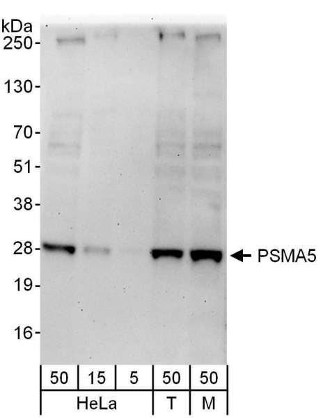 Anti-PSMA5