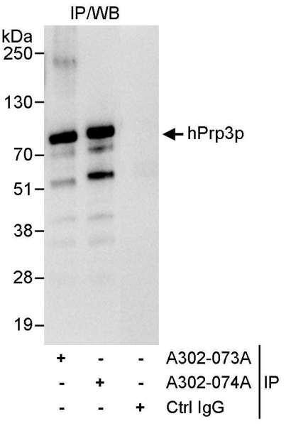 Anti-hPrp3p