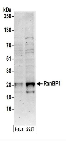 Anti-RanBP1