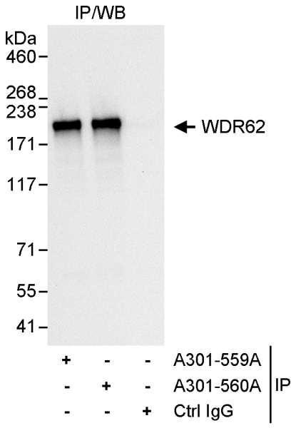 Anti-WDR62