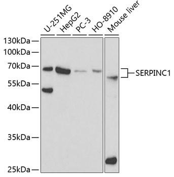 Anti-SERPINC1