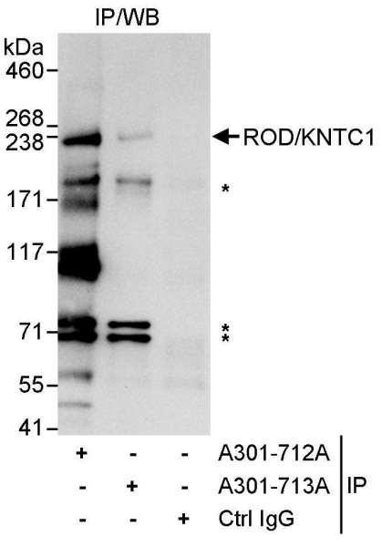 Anti-ROD/KNTC1