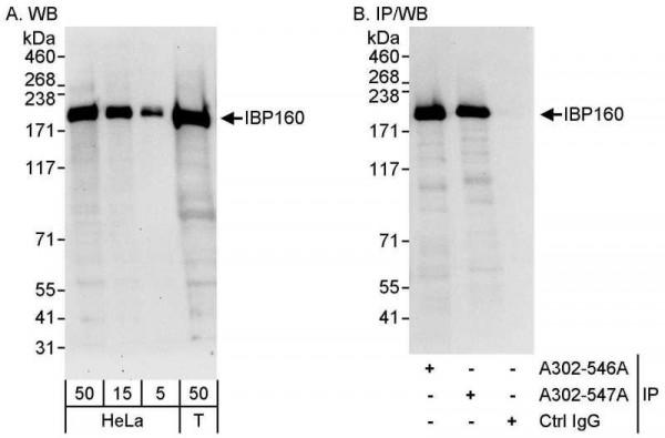 Anti-IBP160