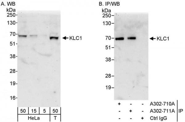 Anti-KLC1