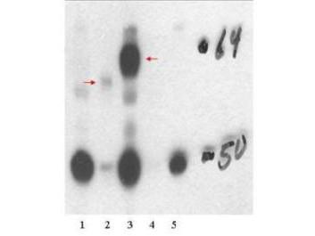 Anti-Thyroid Hormone Receptor beta1 (THRB1) [Rabbit]