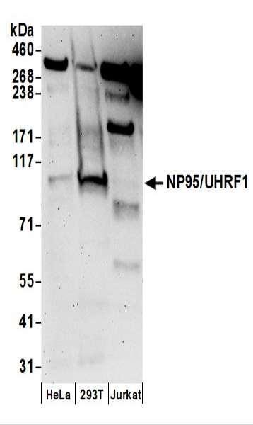 Anti-NP95/UHRF1