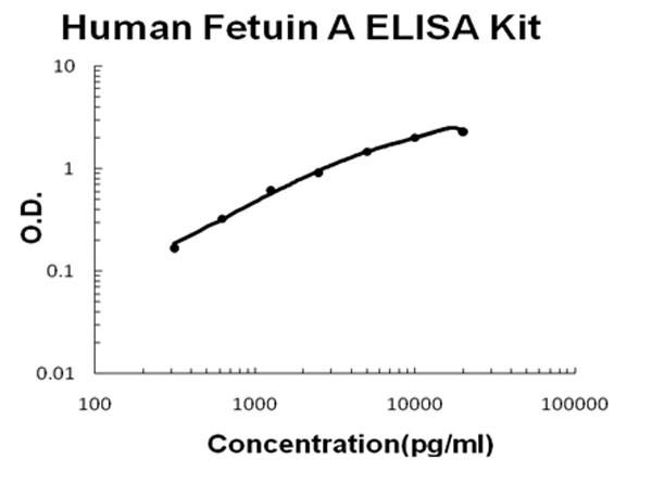 Human Fetuin A ELISA Kit