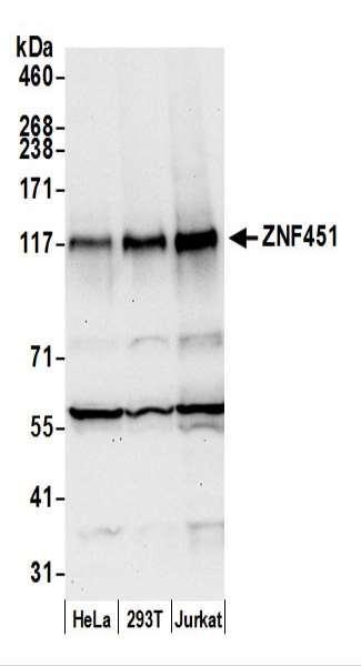 Anti-ZNF451