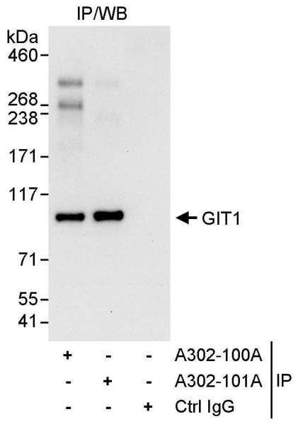 Anti-GIT1