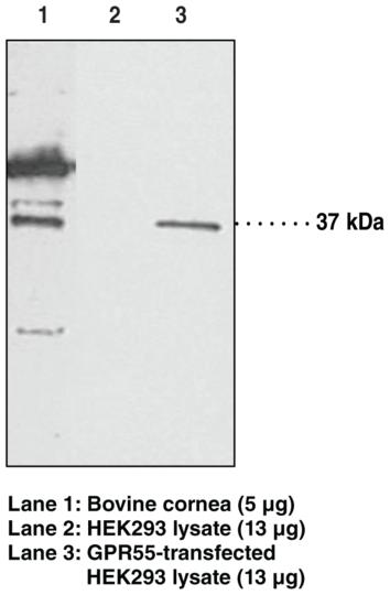 Anti-GPR55