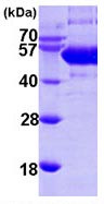 Human soluble liver/pancreas antigen recombinant protein